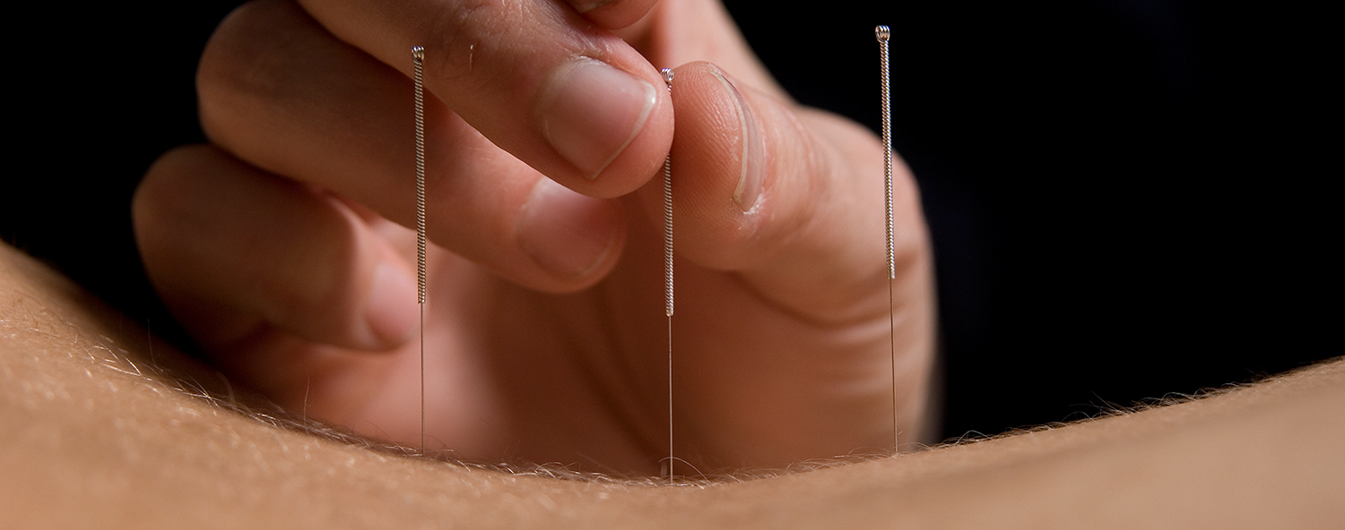 acupuncture-needles-back