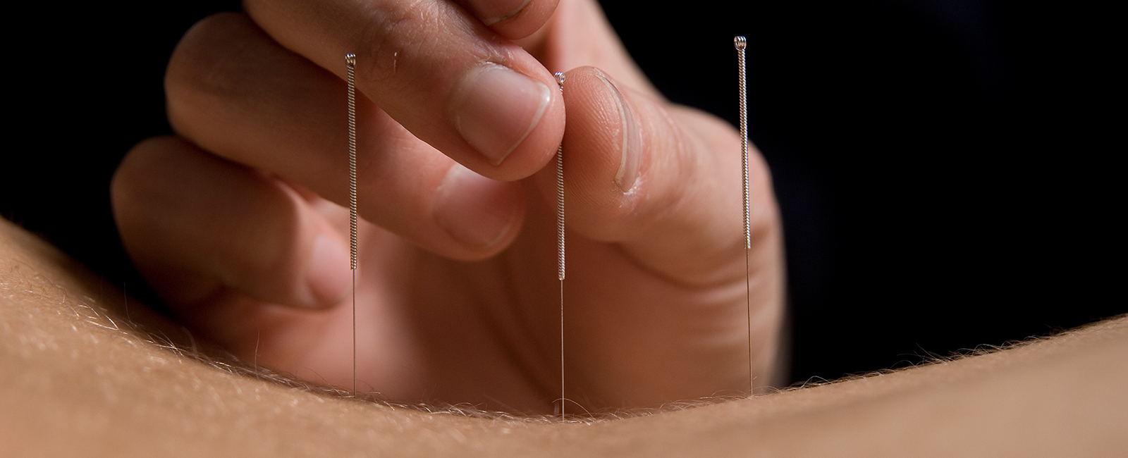 Southwell-Acupuncture-needles-acupuncture-back