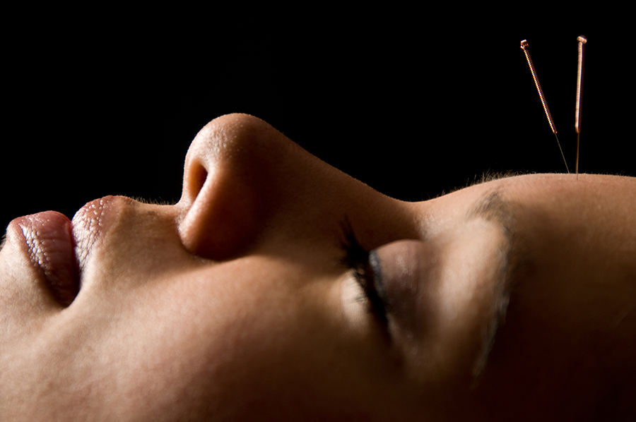 Facial Acupuncture at Southwell Acupuncture Clinic