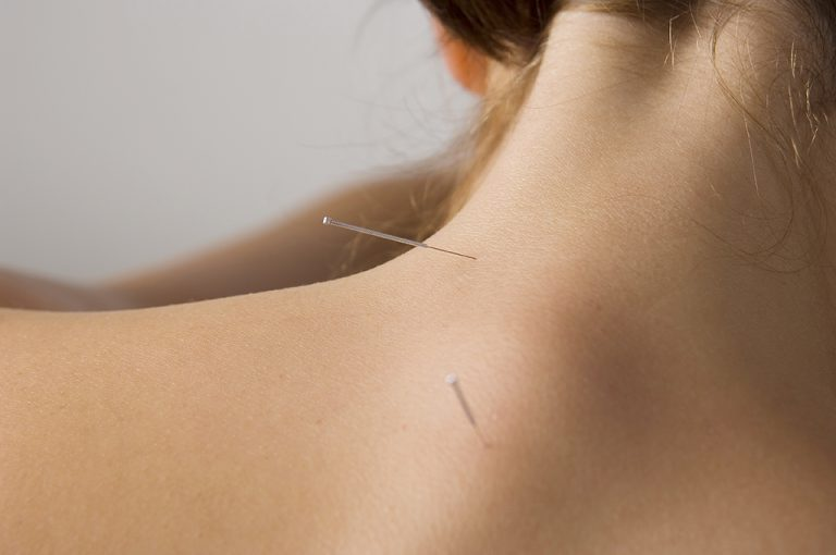 Acupuncture for Neck Pain at Southwell Acupuncture Clinic Nottinghamshire