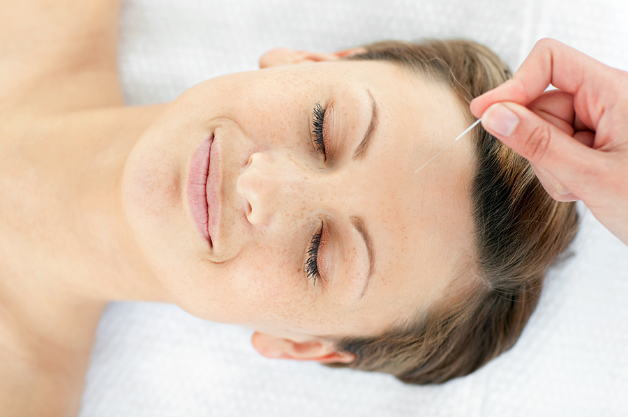 Facial Acupuncture Southwell Acupuncture Clinic