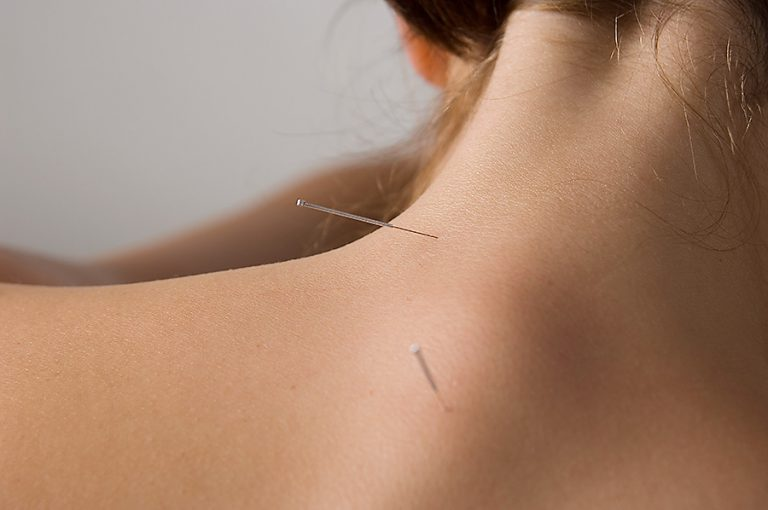 Acupuncture-Treatment-Neck-Pain